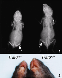 Critical roles of TRAF6